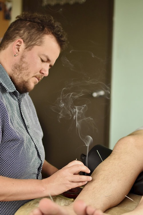 Moxibustion on patient