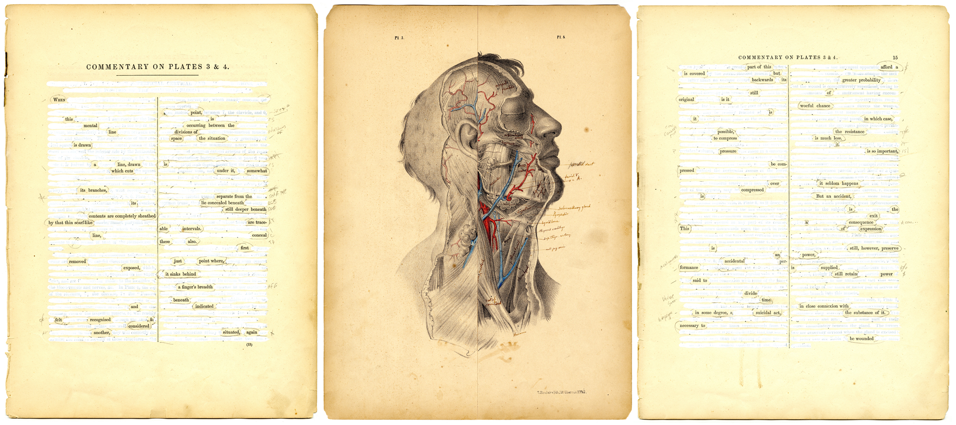 Surgical Pages, Plates 3 and 4