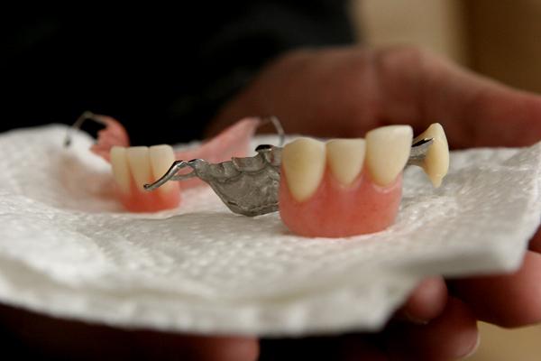 My Partial Dentures