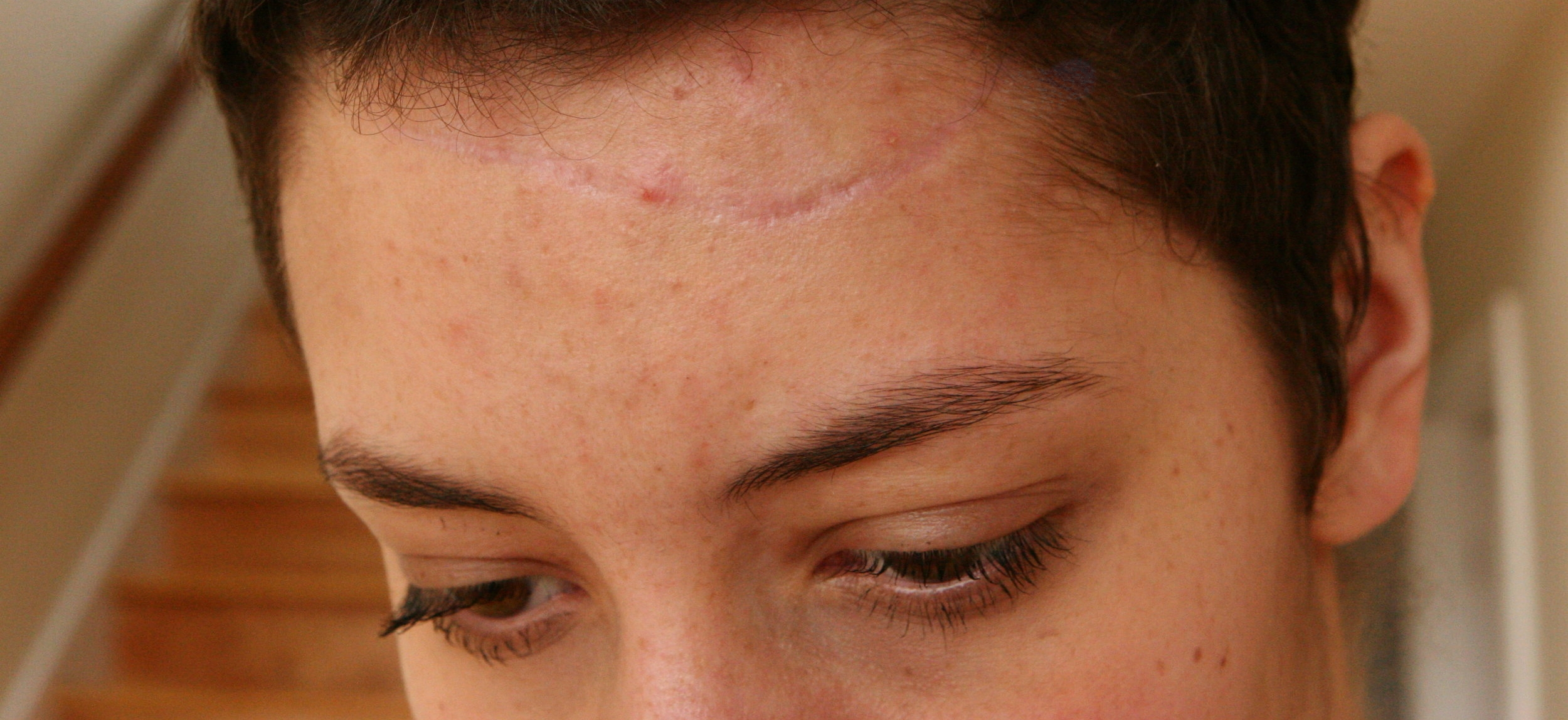 "My forehead scar just a couple of months after I was released from the rehab hospital. It was a never a ""BAD"" scar, but it bothered me."