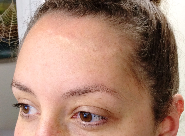 My forehead scar before we started treatment.