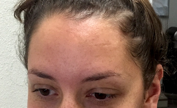 My forehead scar after completing treatment. More filled in and skin toned.