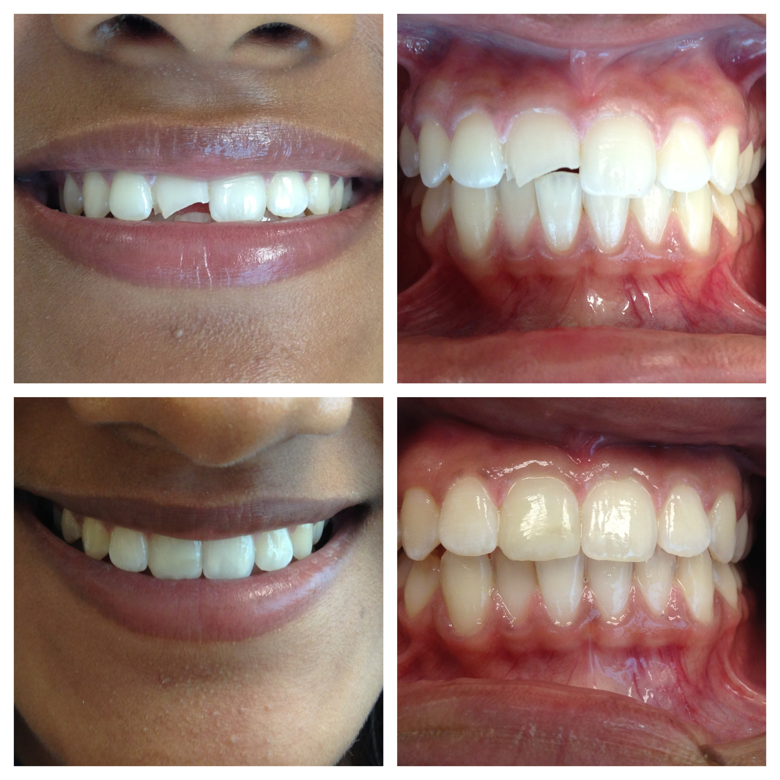 This is one of my teen-aged patients who chipped her tooth during a recreational-related injury. I was happy to help her regain her confidence with a bonded filling!