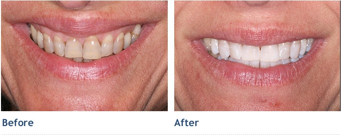 Results after completion of the Kor Deep Whitening System!