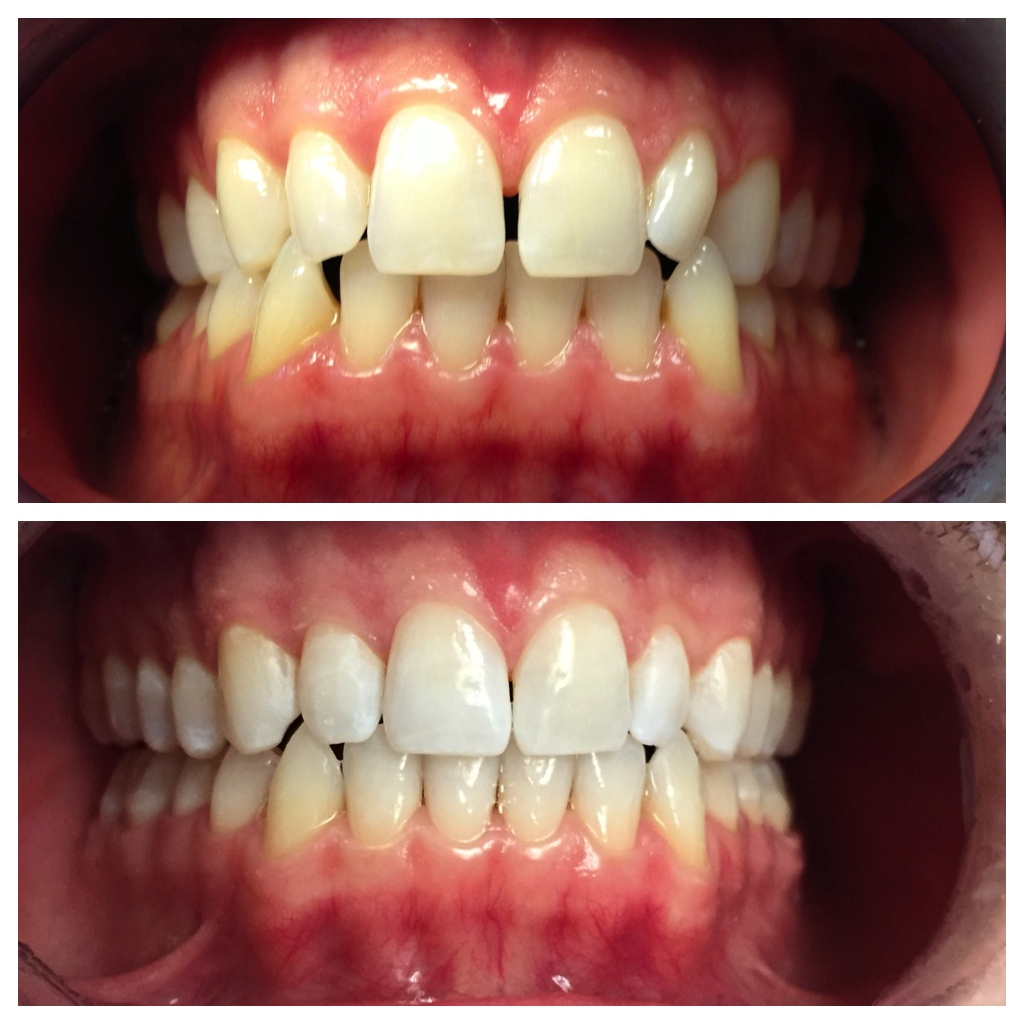 What a difference 20 weeks makes! Our patient was so happy with his results, and so were we!