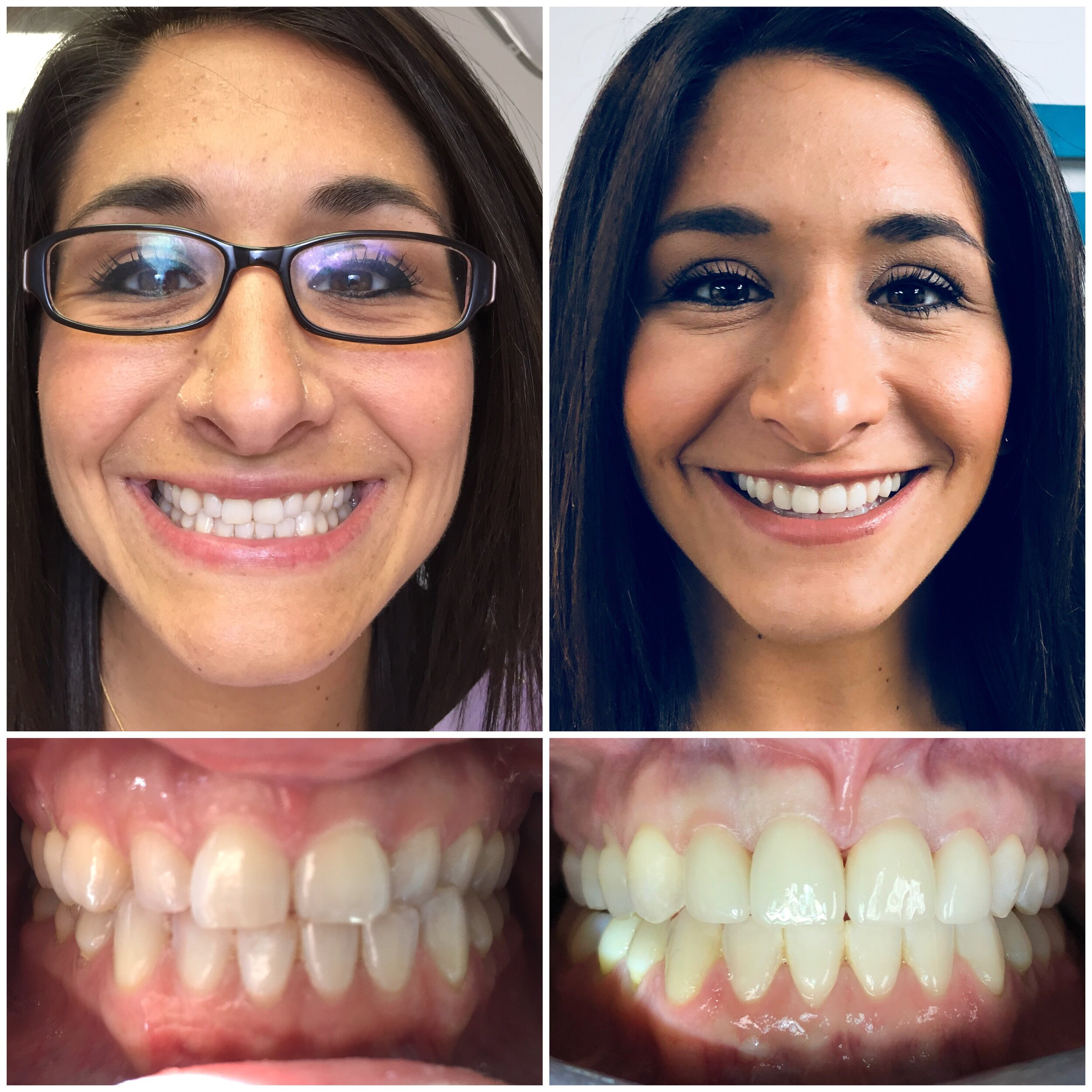 Photo Ready! - Worn, short, and unevenly shaped teeth did not reflect the smart and glamorous woman that Sara is. Invisalign and Porcelain Veneers transformed her smile and her confidence!