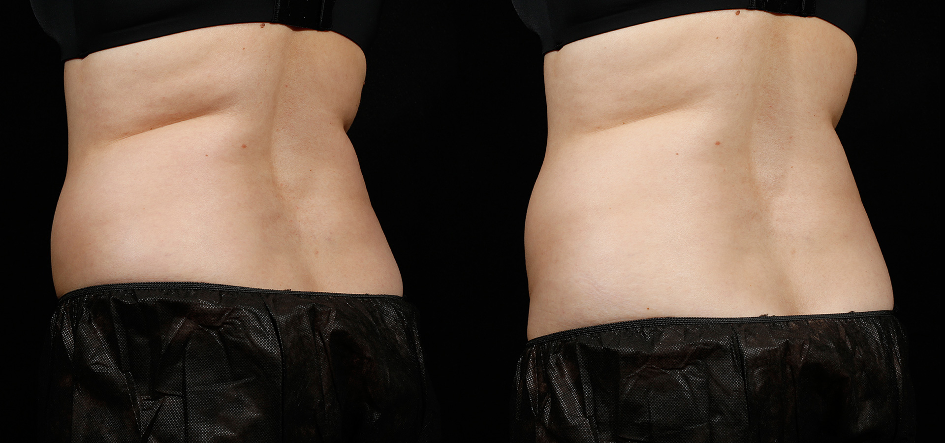 SculpSure Before & After 6 Weeks