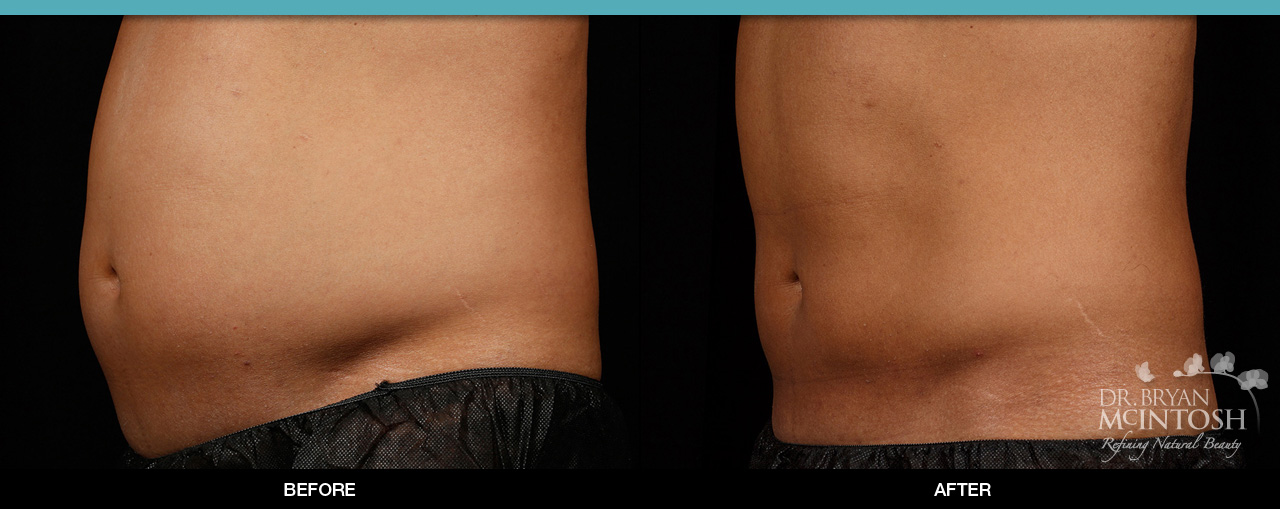 Sculpsure® Before & After 12 Weeks  (2 Treatments, Flanks & Abdomen) *Individual Treatment Results May Vary.