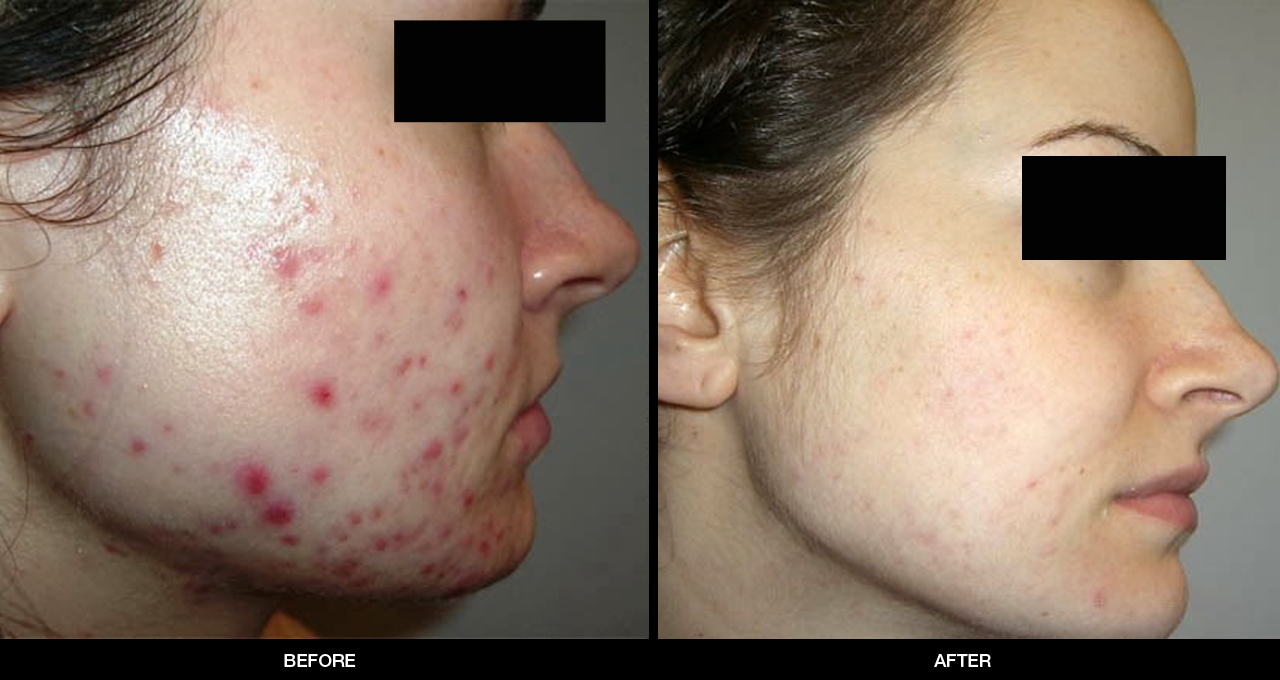 Before & After Chemical peel, 1st example