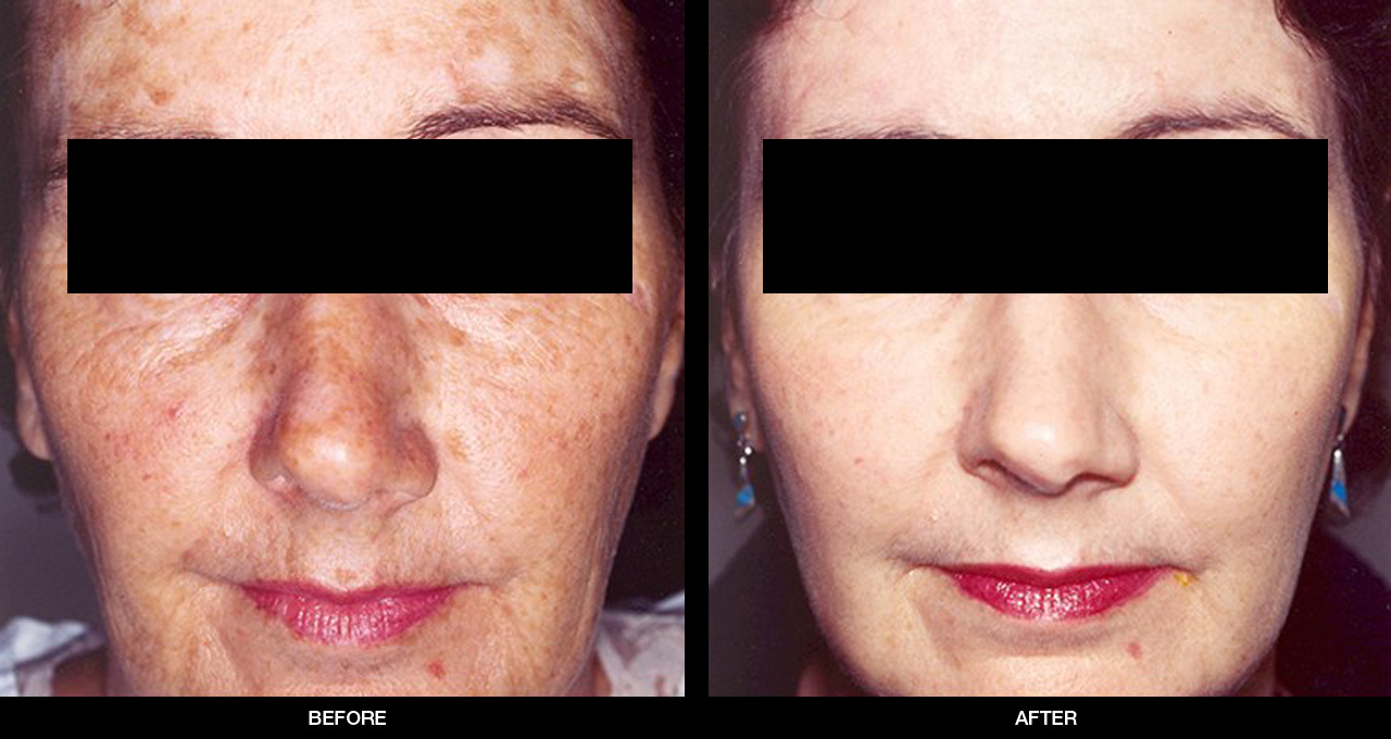 Before and after chemical peel, 2nd example