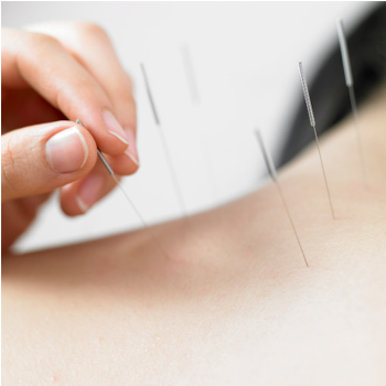 core el centro acupuncture services