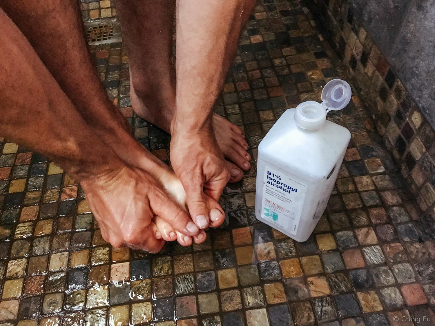 Cleaning our feet that's covered in epoxy with rubbing alcohol.
