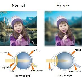 Miopia ingles.jpg