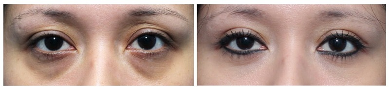Before and after pictures of a Forma patient. Forma treats more than just dry eye!