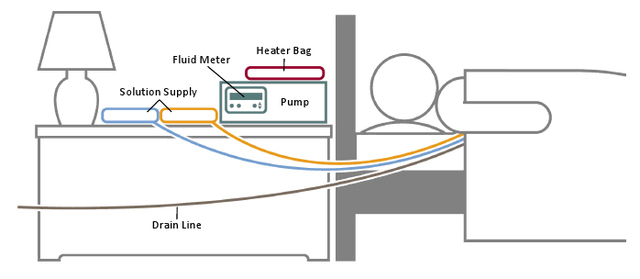 This is how the Cycler is set up while I sleep. The drain line goes to the toilet.