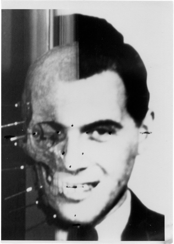 Josef Mengele's Skull