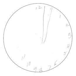 Visual-Neglect-Clock-Dial.jpg