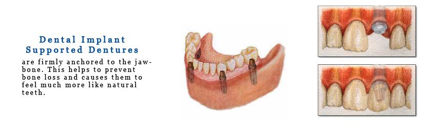 Dental_Impants_Pic_NoFrame.jpg