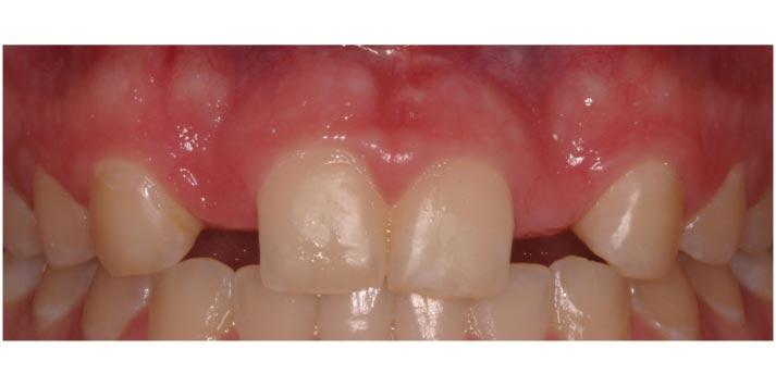 teethbefore.jpg