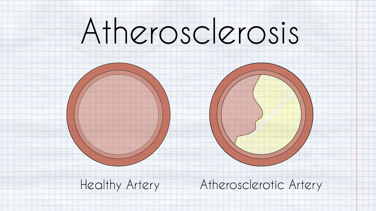 Atherosclerosis diagram