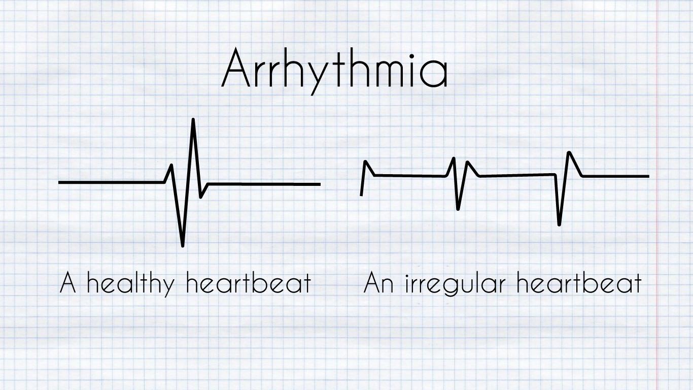 Arrythmia diagram