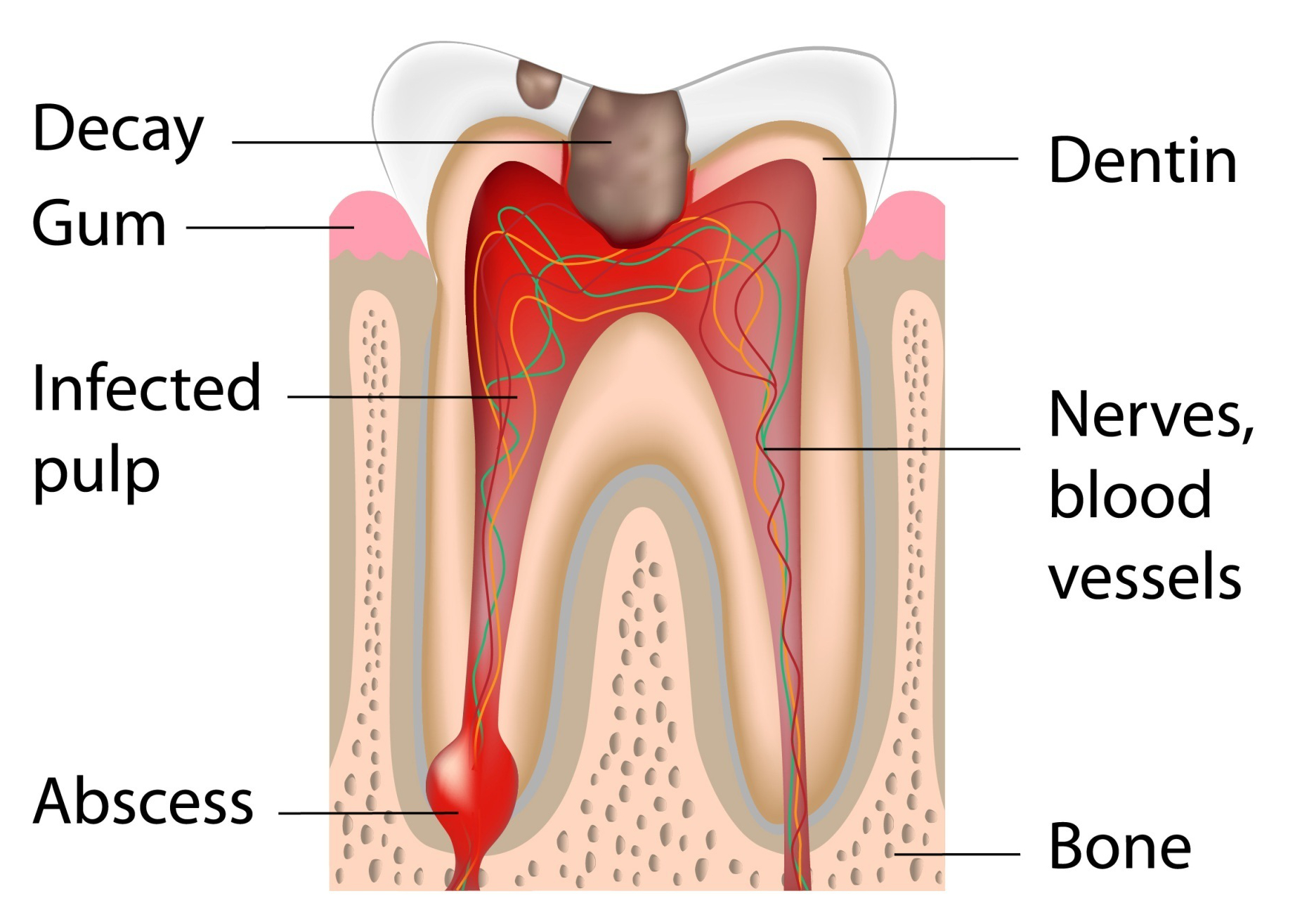 infected-tooth-canal.jpg
