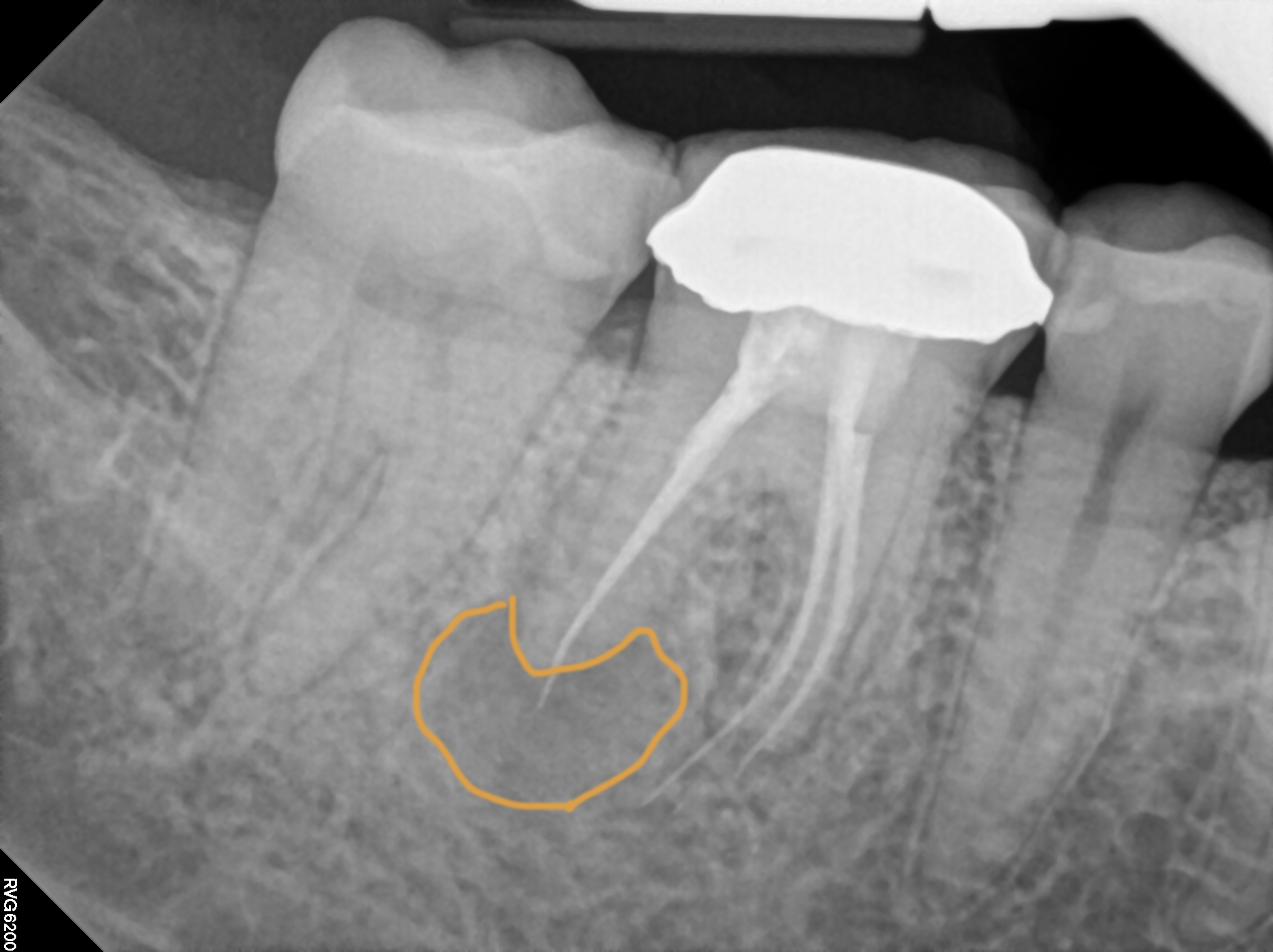 my root canal. the orange outline is the abscess created by the dentist failing to fill one of my canals. you can also see where the material extends too far beyond the tooth.