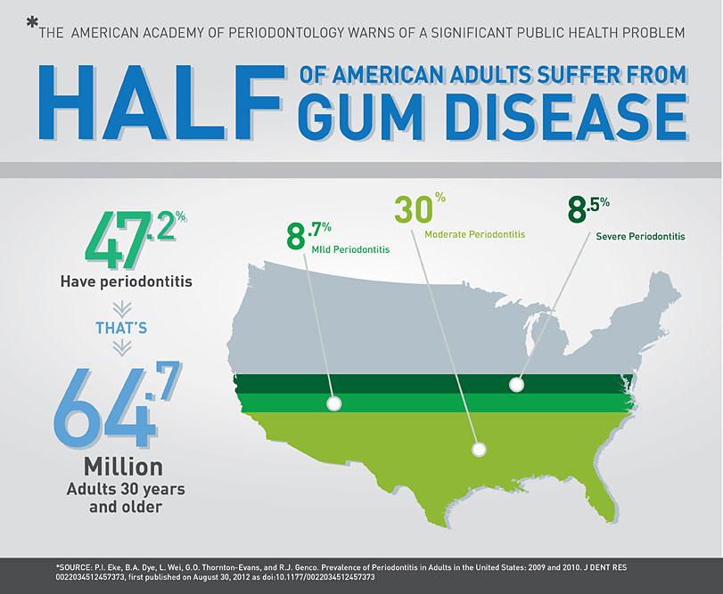 cdc-americans-with-gum-disease.jpg