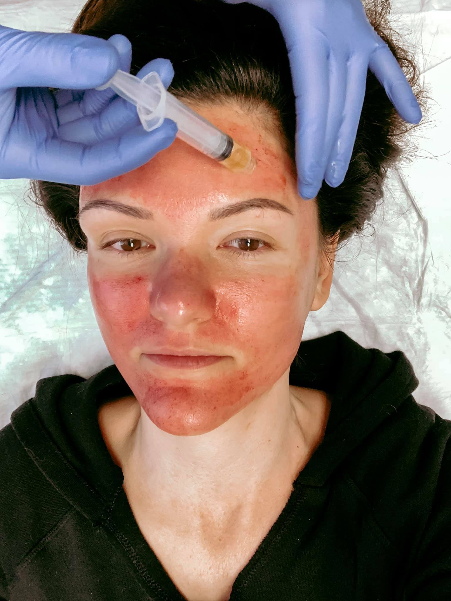 How I Fixed My Horrible Skin After 20 Years Of Tanning Acne Celery And The City