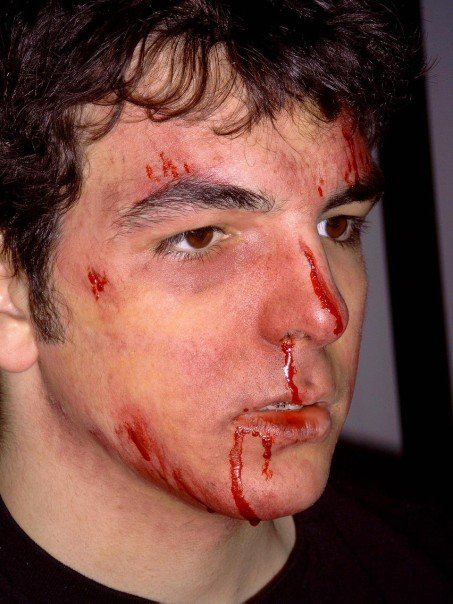 beaten up.jpg