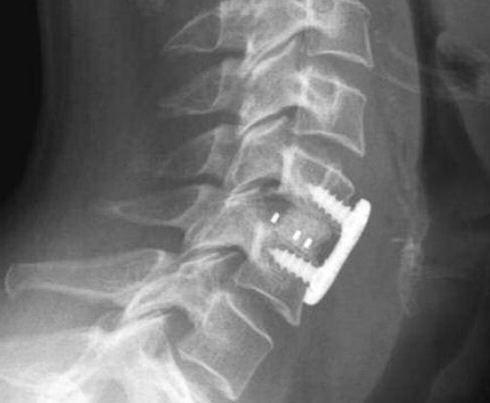 Neck Surgery.jpg