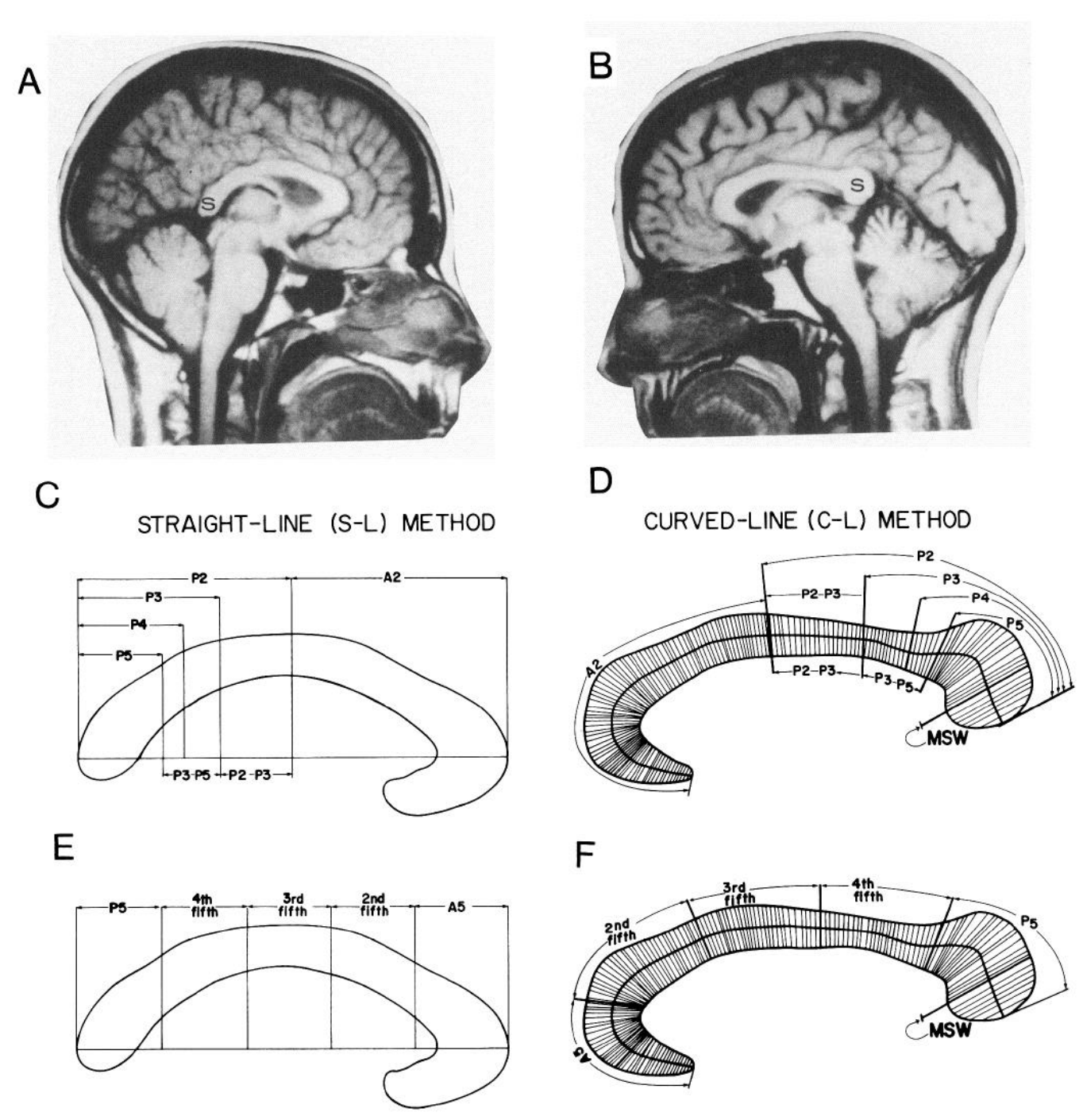 """Figure 1 from Allen et al. (1991), Sex Differences in the Human Corpus Callosum , showing a representative MRI scan of a male brain (A) and a female brain (B) as well as schematics of how they measured the sizes of different parts of the corpus callosum (C-F). Although they found a difference in the """"bulbosity"""" of the splenium (S) between males and females,observers were unable to correctly categorize images on their own at a rate higher than would occur by chance."""
