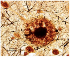 Figure 1: Amyloid-beta plaques in brain tissue from Alzheimer's Disease patients.   Adapted from: http://bigthink.com/articles/the-brain-plaques-and-tangles-that-cause-alzheimers-disease
