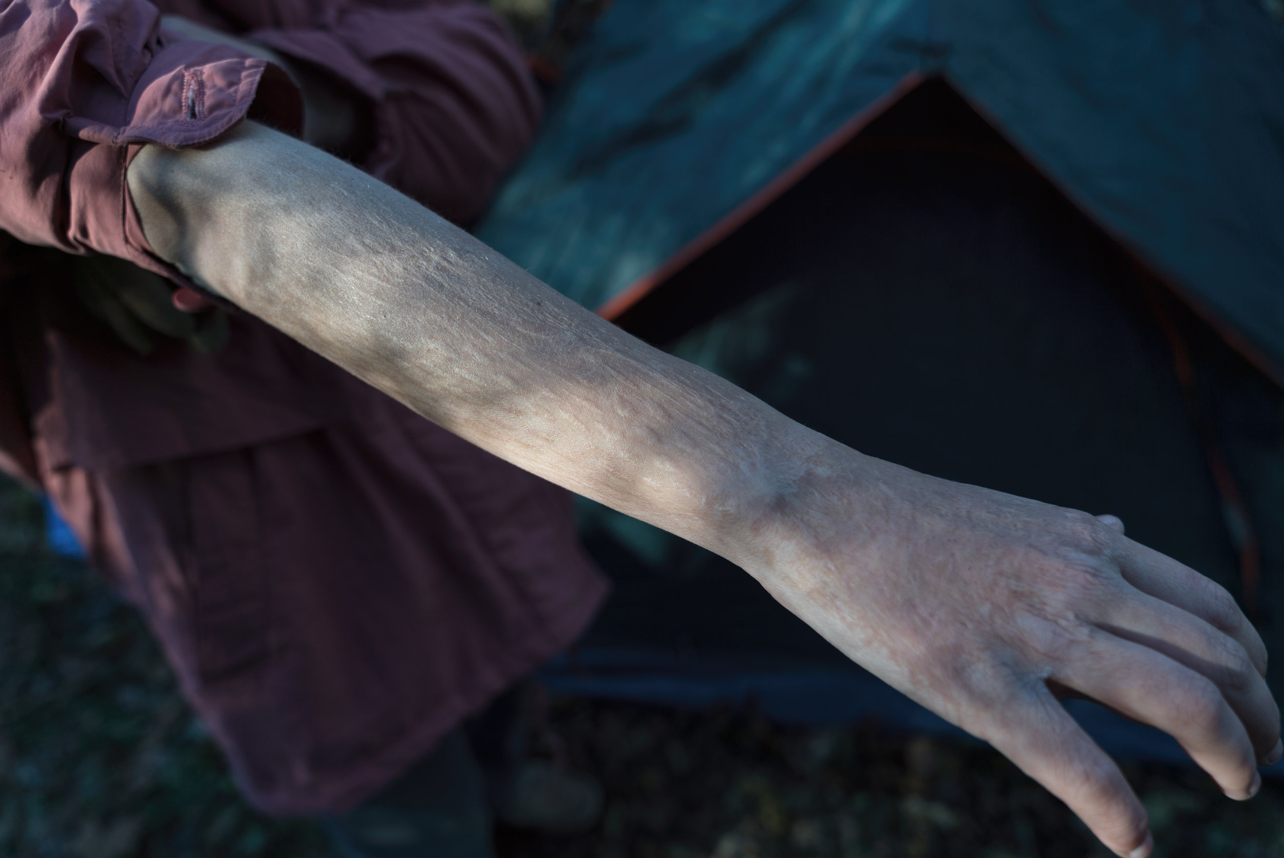 Crystal has burn scars on her arms, hands and legs from when her father allegedly poured scalding hot coffee on her.