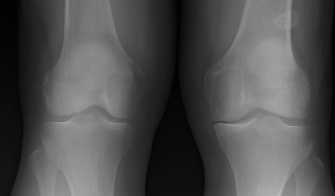 Left Medial Joint Space Narrowing in Moderate - Severe Medial Osteoarthritis