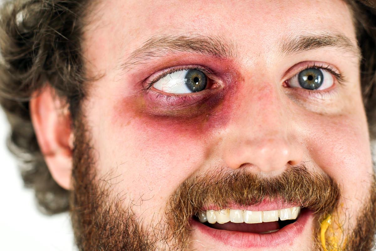 head-black_eye.jpg