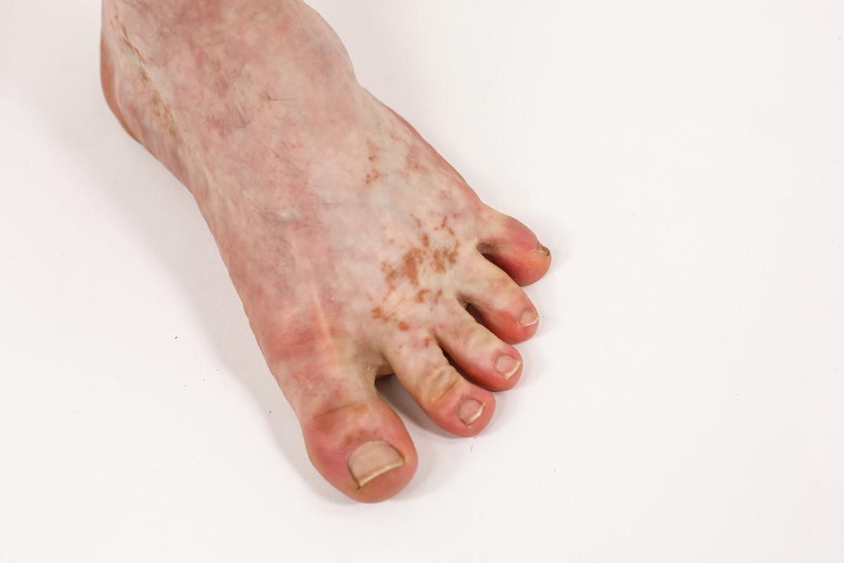legs-foot.jpg