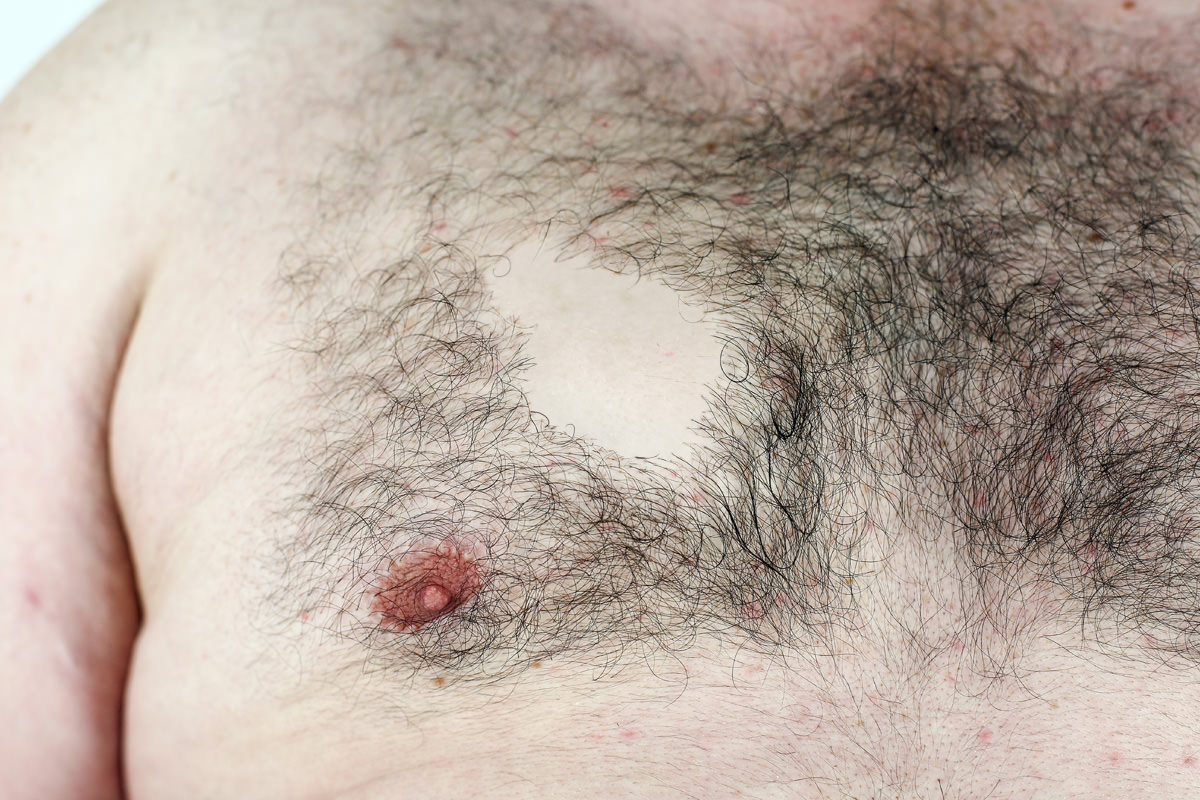 torso-bald_spot.jpg