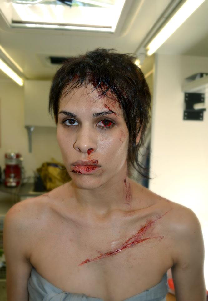 josef rarach - head injury 3.jpg