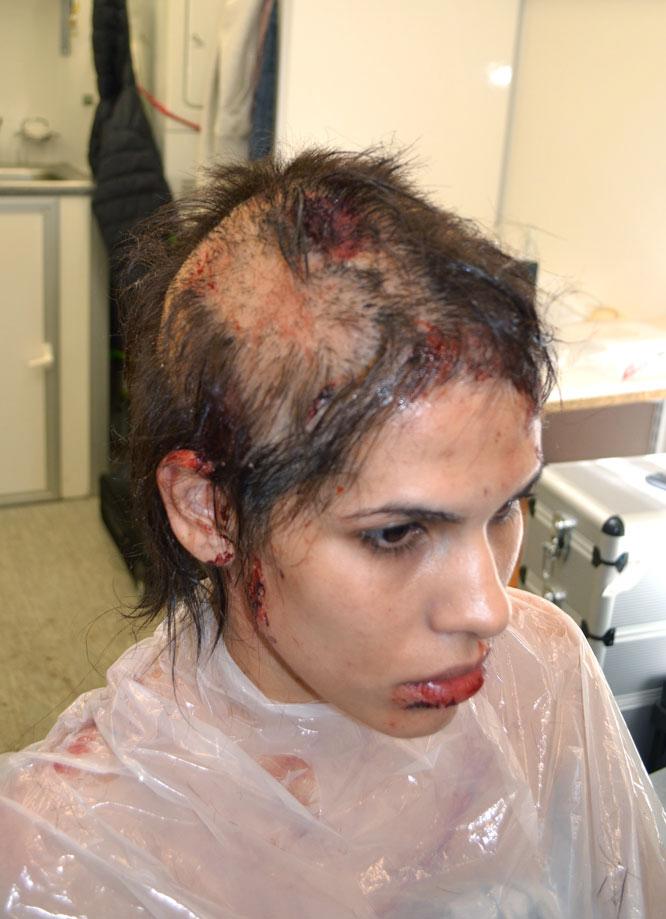 josef rarach - head injury 4.jpg