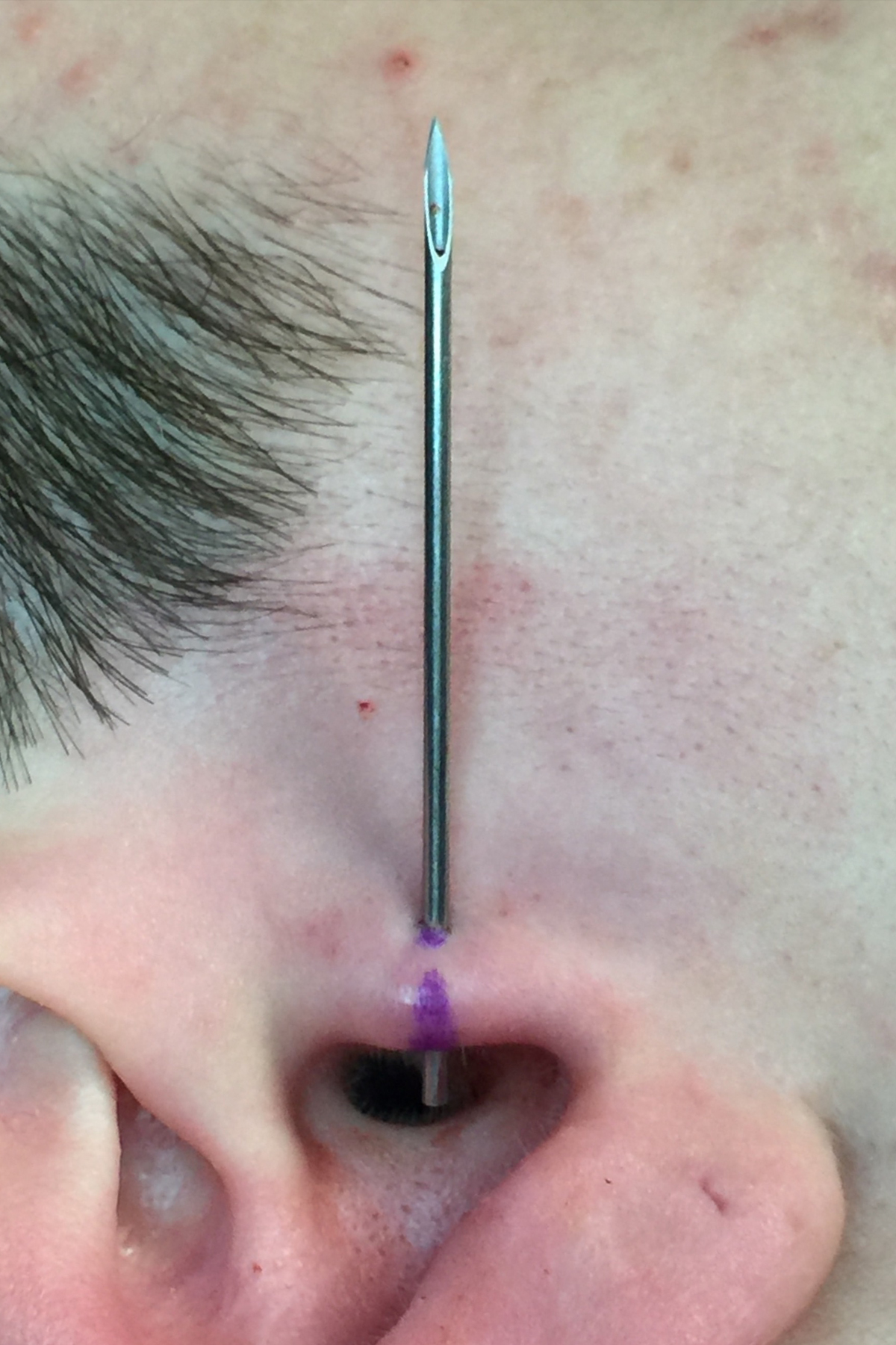 tragus straight needle edited.jpg