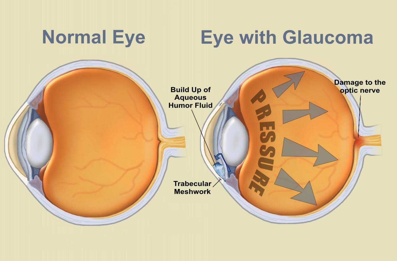 eyes_glaucoma.jpg