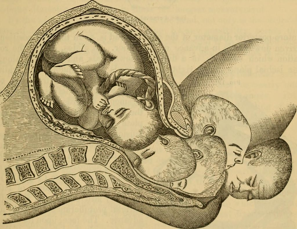 A_System_of_midwifery_-_including_the_diseases_of_pregnancy_and_the_puerperal_state_(1875)_(14596125450).jpg