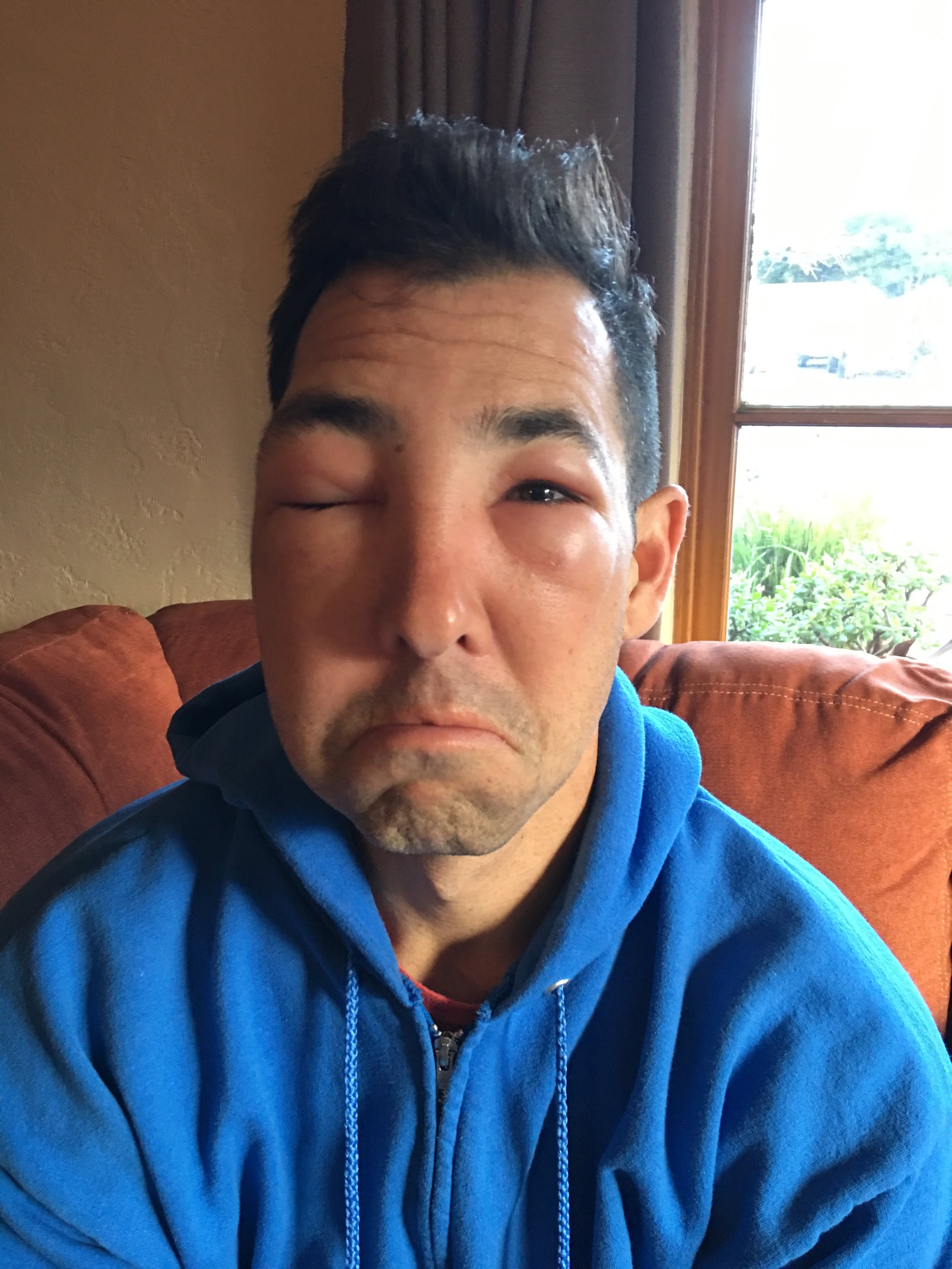 What happens when you are allergic to a bee sting, and you get stung. Hope you feel better soon Rob.