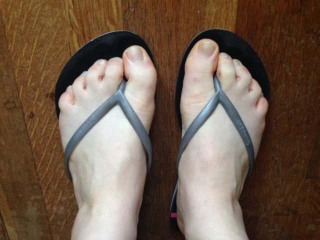 Aside from my sheer pallor, notice how toes tend to grip in flip flops as you walk...Not so great!