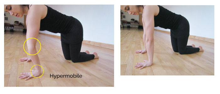 Here's an image from  80gladstone  demonstrating hypermobile elbows.  When a student hyperextends the joint (left), they are no longer using muscular energy to support themselves.  This is a problem in music, because we need muscles to support weight and help articulate keys.