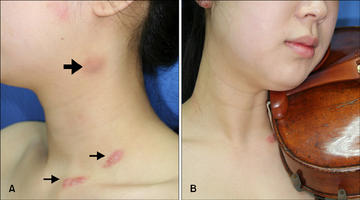 Great picture from Allthingsstrings.com demonstrating a few of the different places where the hickey can manifest, depending on your skin and setup.  Some folks just have irritation at the top arrow, others only along the collarbone.  It depends on your shoulder rest, chin rest, skin, and setup, for starters, as well as the weather, how much you sweat when you play, and how often you clean the chinrest.