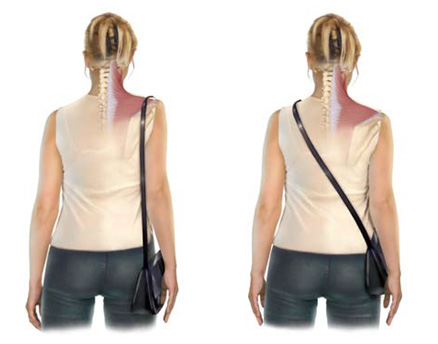 Notice how the shoulder on the left has to raise in order to support the bag? Every time you carry your case on one shoulder, you are reinforcing this pattern.