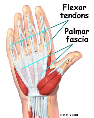 My pain was in the base of the palm at the conjunction of all of the flexor tendons.