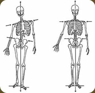 Some forms of manual therapy aim to change structural imbalances, asymmetry, etc.  This is an image often used in different rolfing and structural integration practices.